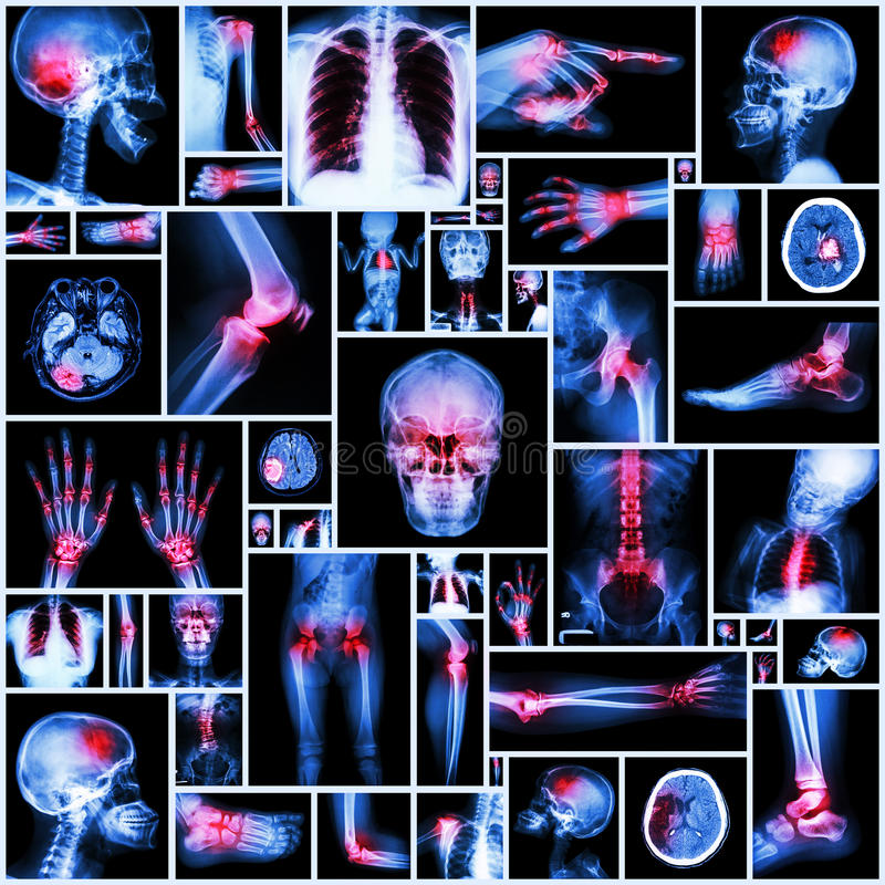 Collection X-ray multiple organ and arthritis at multiple joint ( Rheumatoid, Gout) royalty free stock image
