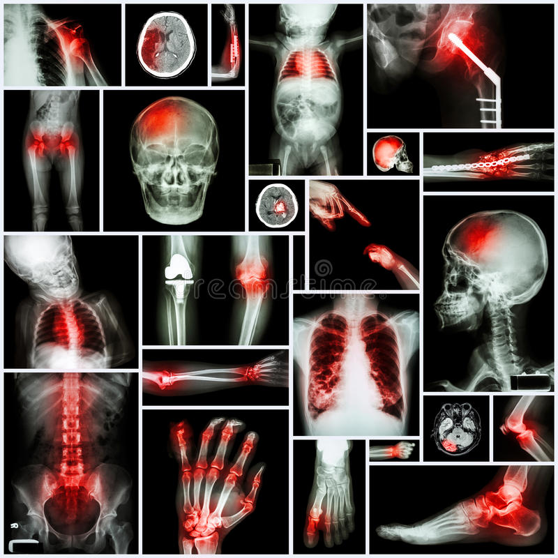 Collection of X-ray multiple part of human,Orthopedic operation and multiple disease (Shoulder royalty free stock image