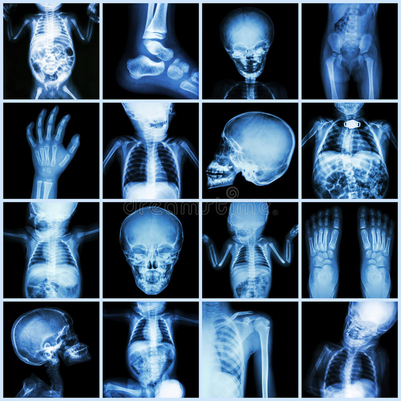 Collection X-ray part of child body. ( Whole body : skull head neck face spine shoulder chest thorax lung heart abdomen arm elbow forearm hip pelvis thigh leg stock images
