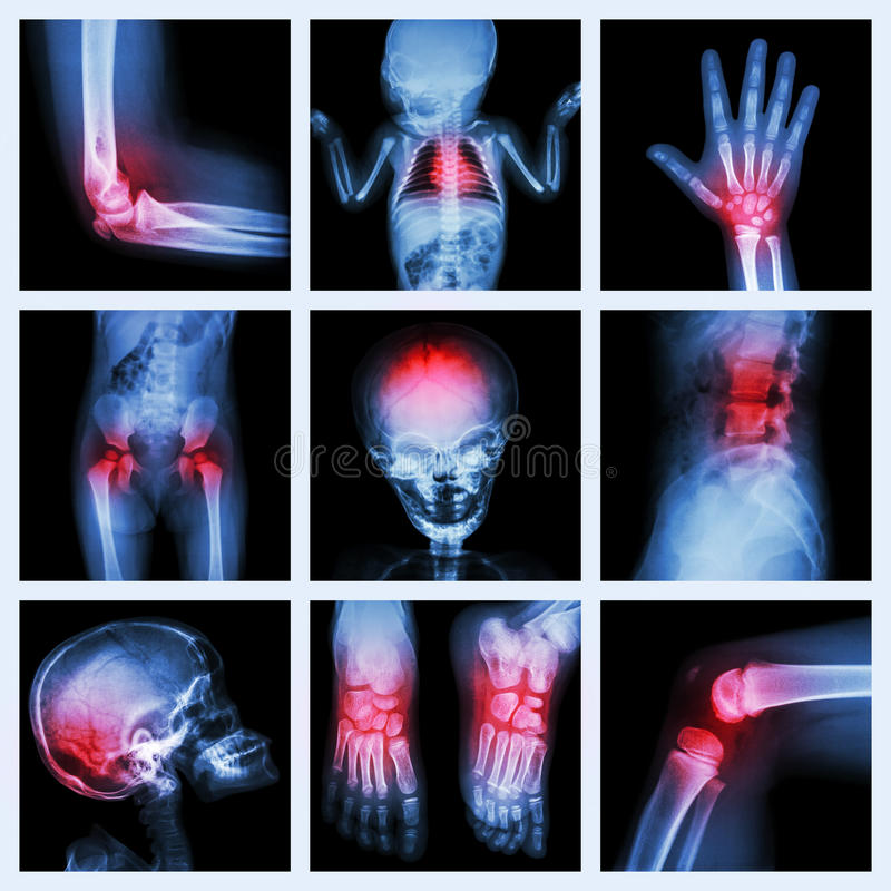 Collection X-ray part of child and multiple injury stock images