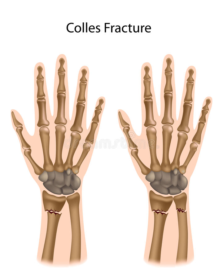Colles fracture royalty free illustration
