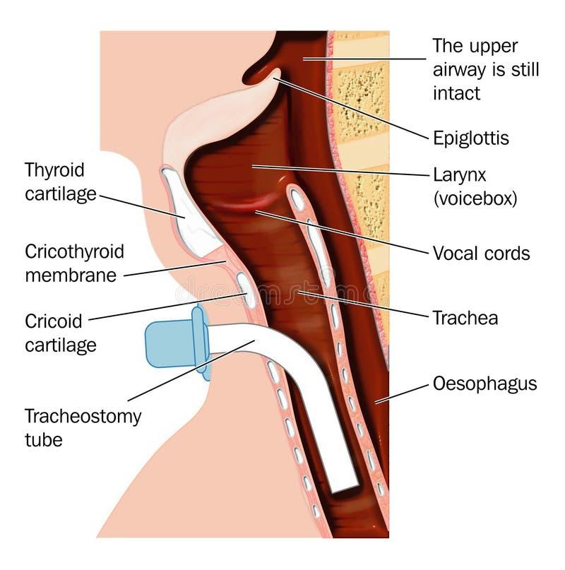 Colocación del tubo de la traqueotomía libre illustration