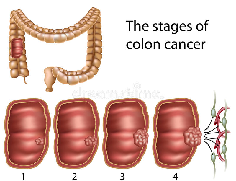 Download Colon cancer, eps8 stock vector. Illustration of capillary - 19275329