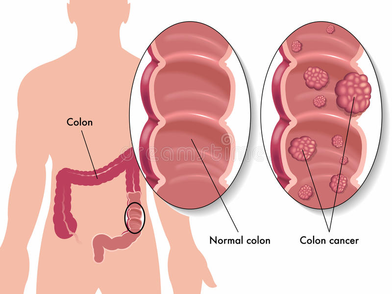 Colon cancer. Medical illustration of colon cancer royalty free illustration