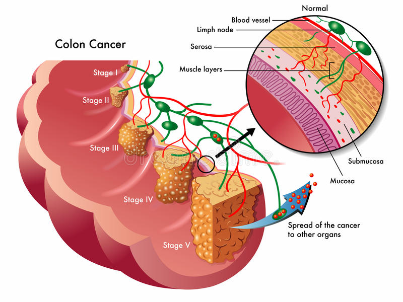 Colon cancer stock illustration