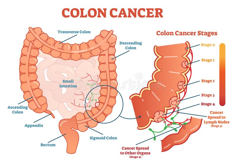 Colon cancer medical vector illustration scheme, anatomical diagram with cancer stages. And spreading to other organs stock illustration