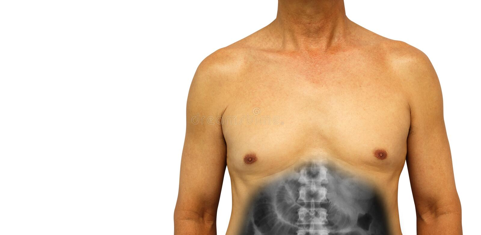 Colon cancer and Small intestine obstruction . Human abdomen with x-ray show small bowel dilated due to obstructed . Isolated back royalty free stock images