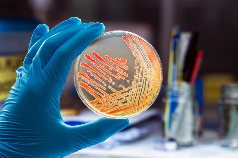 Colonies bacteria gram negative bacilli/ Gram negative cocco bacilli . royalty free stock image