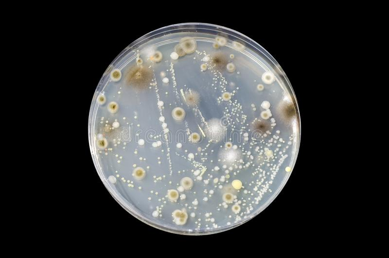 Colonies of different bacteria and mold fungi grown on nutrient agar stock image