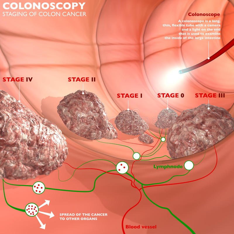 Colonoscopie et sonde illustration stock