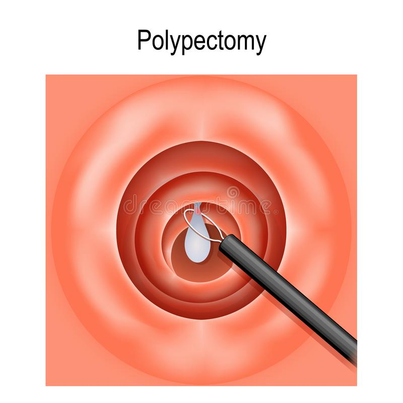 Colorectal polyp and Polypectomy royalty free illustration