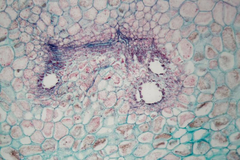 Plant cells with damages caused by a parasitic animal under the microscope. Colored plant cells with damages caused by a parasitic animal under the microscope royalty free stock images