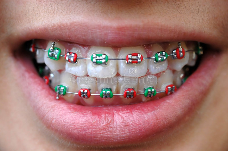 Colorful braces stock photography