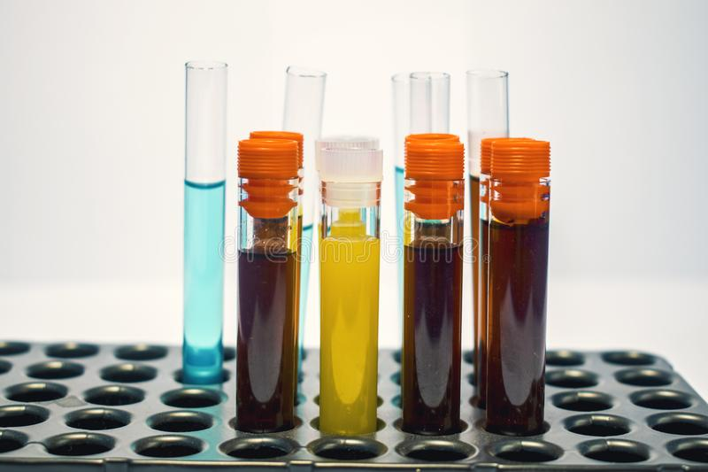 Colorful laboratory test tubes, biochemistry blood tests, urine test, tests tube, medical analysis, research concept, fertility r stock image