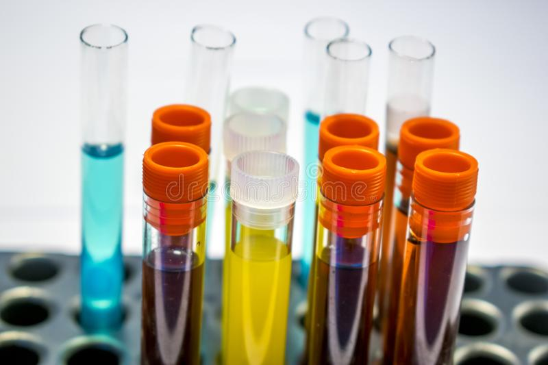 Colorful laboratory test tubes, biochemistry blood tests, urine test, tests tube, medical analysis, research concept, fertility r. Esearch, stem cell fluids stock image