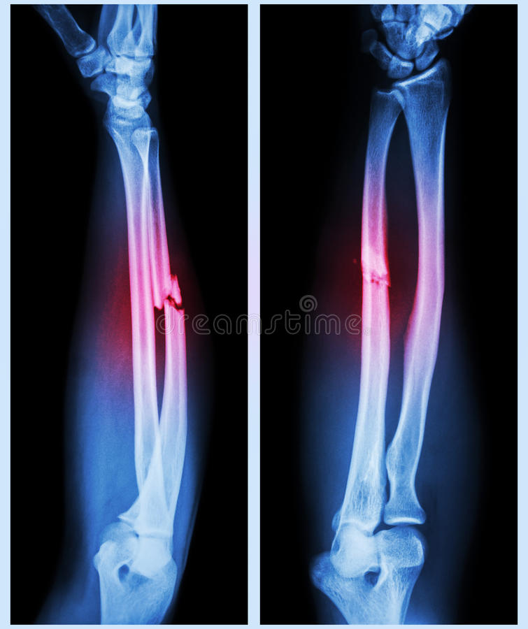 Comminuted fracture shaft of ulnar bone royalty free stock photo