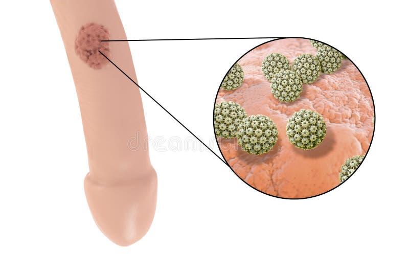 papillomavirus wratten szülés utáni papillomavírus