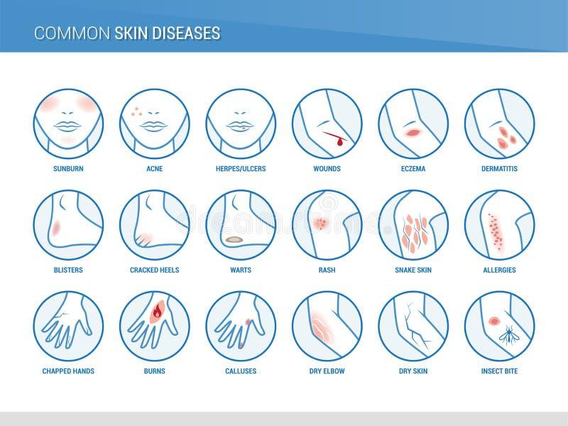Common skin diseases stock illustration
