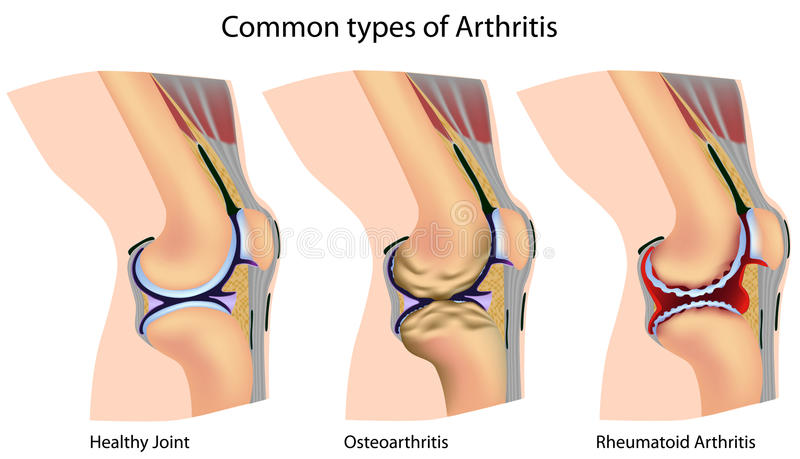Common types of arthritis royalty free illustration