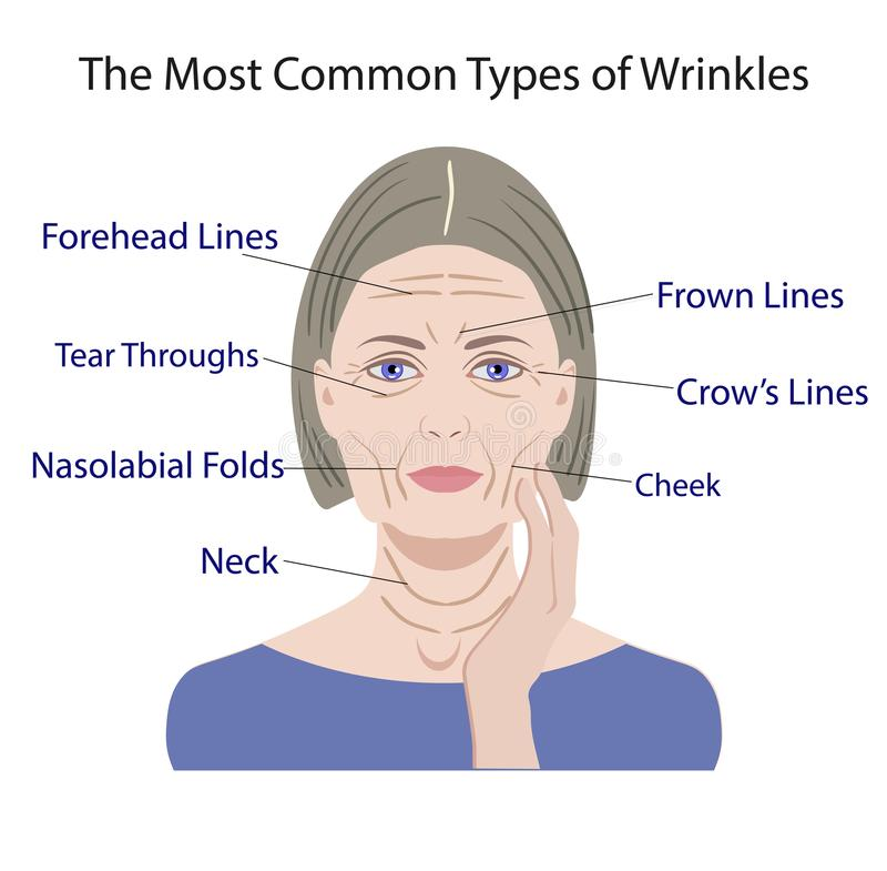 Common Types of Facial Wrinkles. cosmetic surgery. woman facial treatment stock illustration