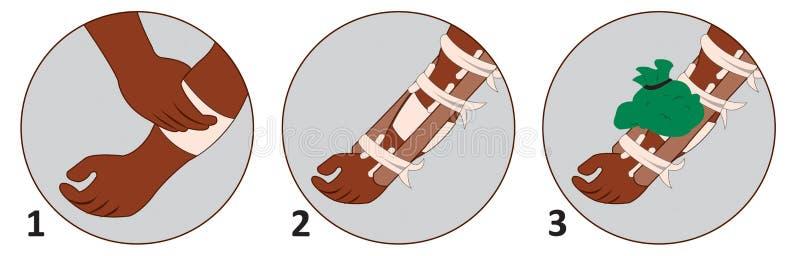 Como aplicar a situação comum dos primeiros socorros ilustração stock