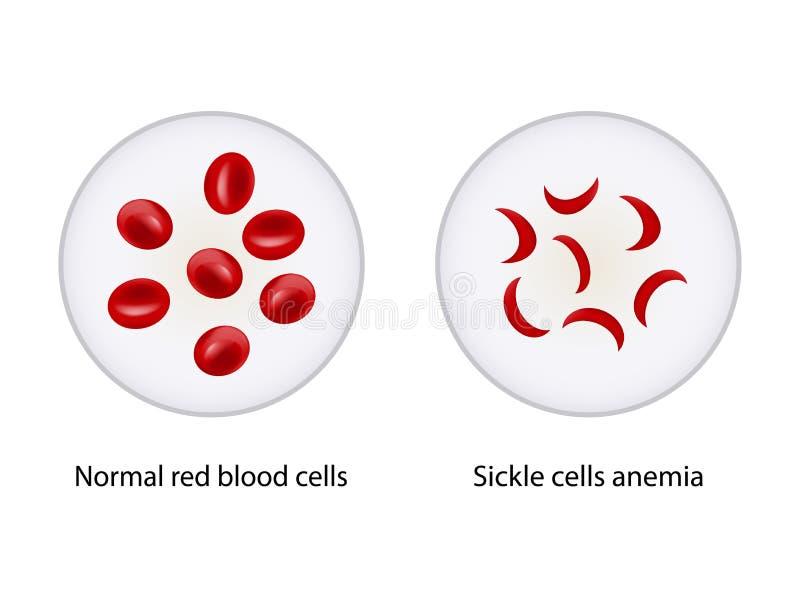 Comparação entre os glóbulos vermelhos normais e a anemia das células falciformes ilustração royalty free