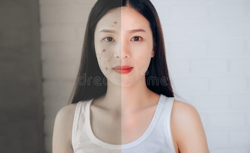 Comparación de la cara asiática del acné de la mujer y después de la cara limpia imágenes de archivo libres de regalías