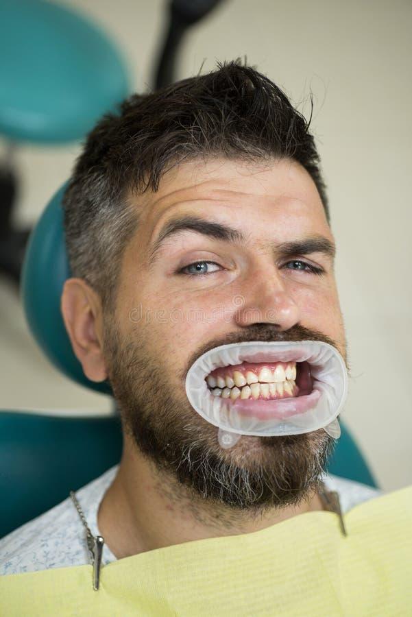 Comparación después de los dientes que blanquean Enseñe a los pacientes sobre dietas, flossing, el uso del fluoruro, y otros aspe imagenes de archivo