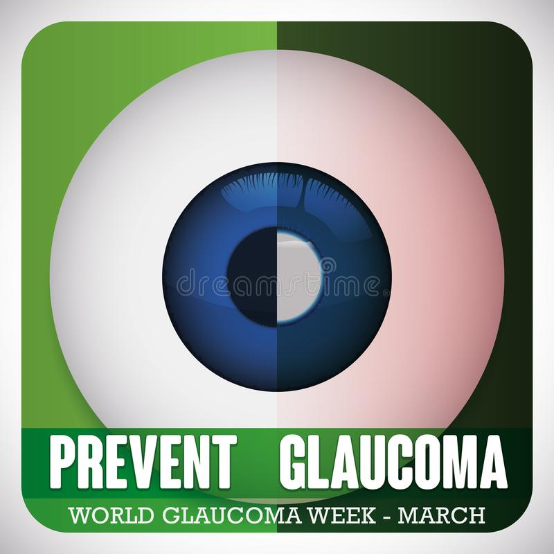 Comparative Eyeball of Healthy and Sick Eye for Glaucoma Week, Vector Illustration. Poster for World Glaucoma Week with a eyeball divided to compare a healthy royalty free illustration