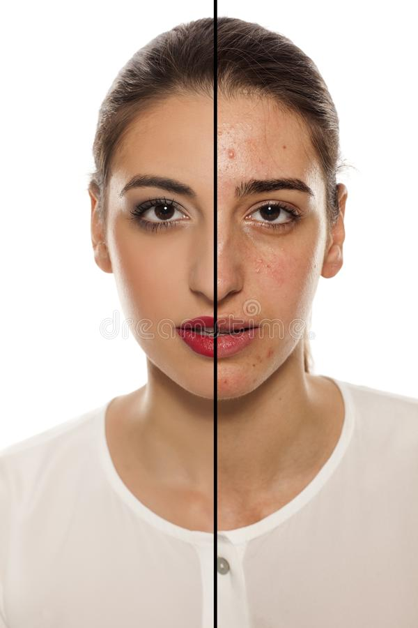 Before and after makeup. Comparative portrait of a female face with problematic skin, before and after makeup stock photos