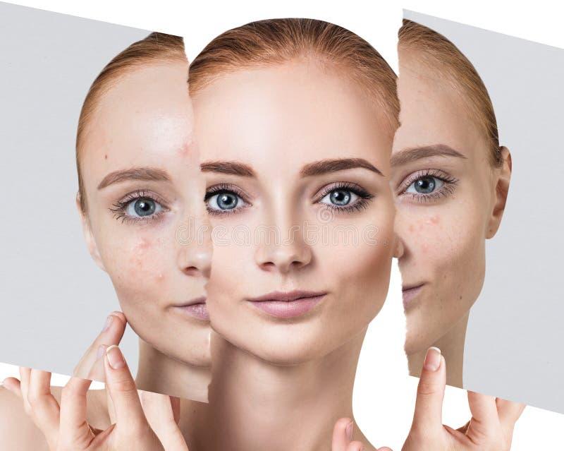 Compare da foto velha com a acne e a pele saudável nova fotos de stock royalty free