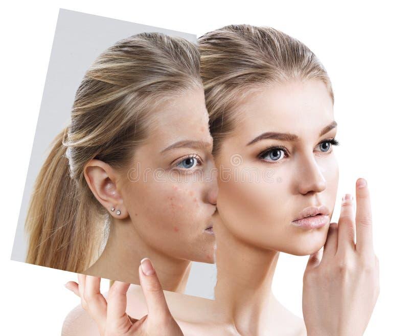 Compare da foto velha com a acne e a pele saudável nova imagem de stock royalty free