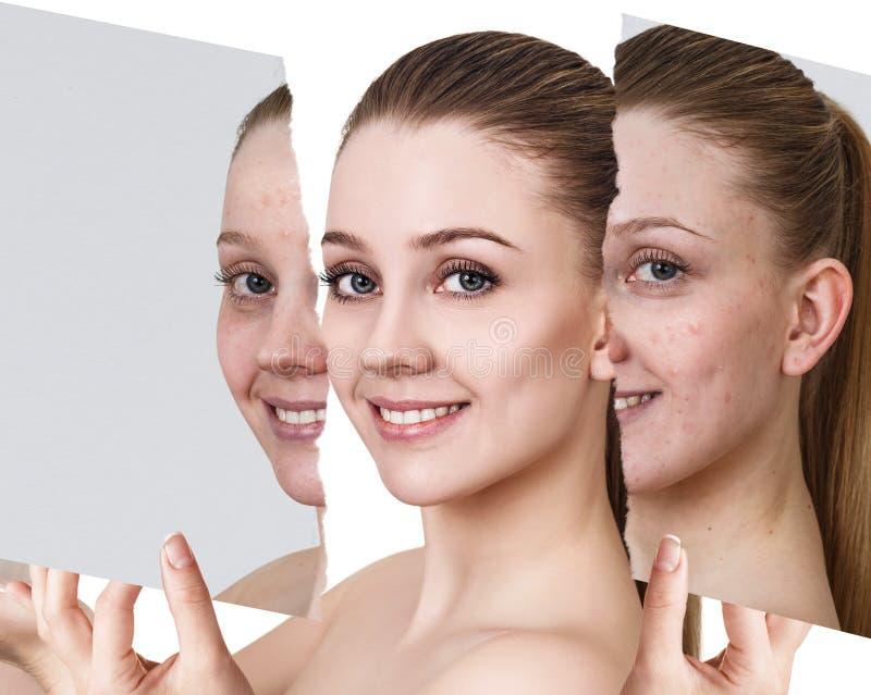 Compare da foto velha com a acne e a pele saudável nova fotografia de stock royalty free
