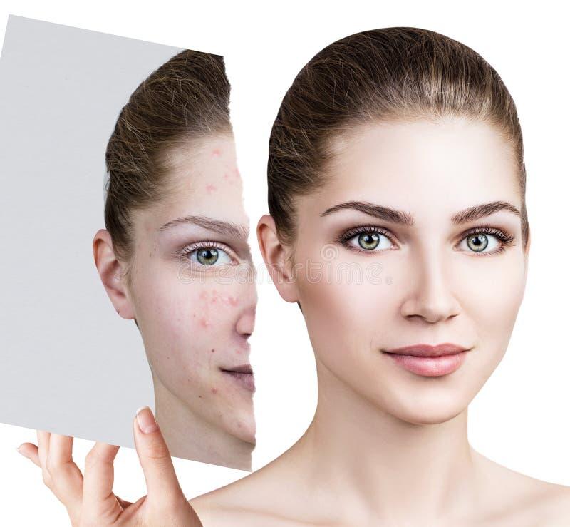 Compare da foto velha com a acne e a pele saudável nova fotografia de stock