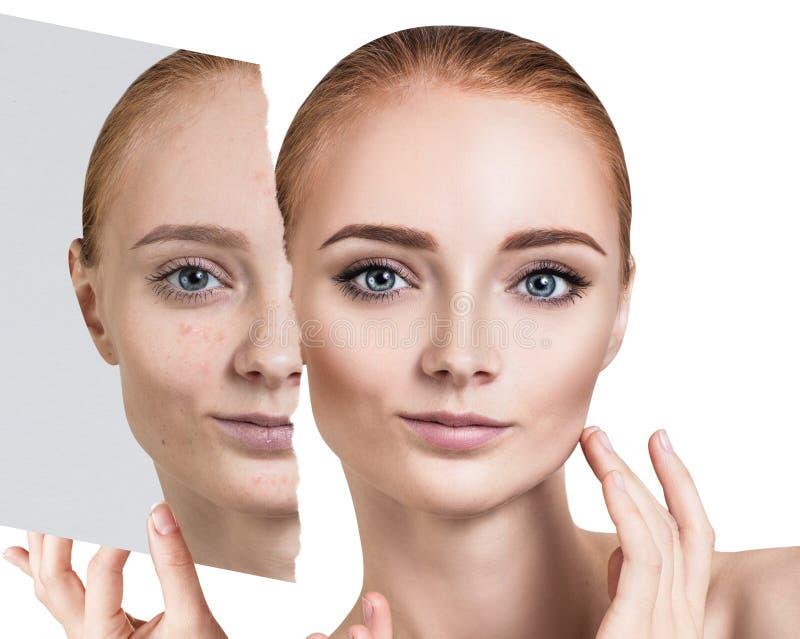 Compare da foto velha com a acne e a pele saudável nova fotos de stock