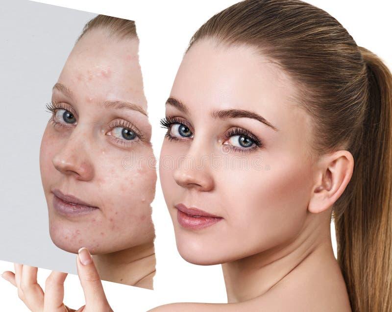 Compare de la foto vieja con acné y nueva piel sana fotografía de archivo