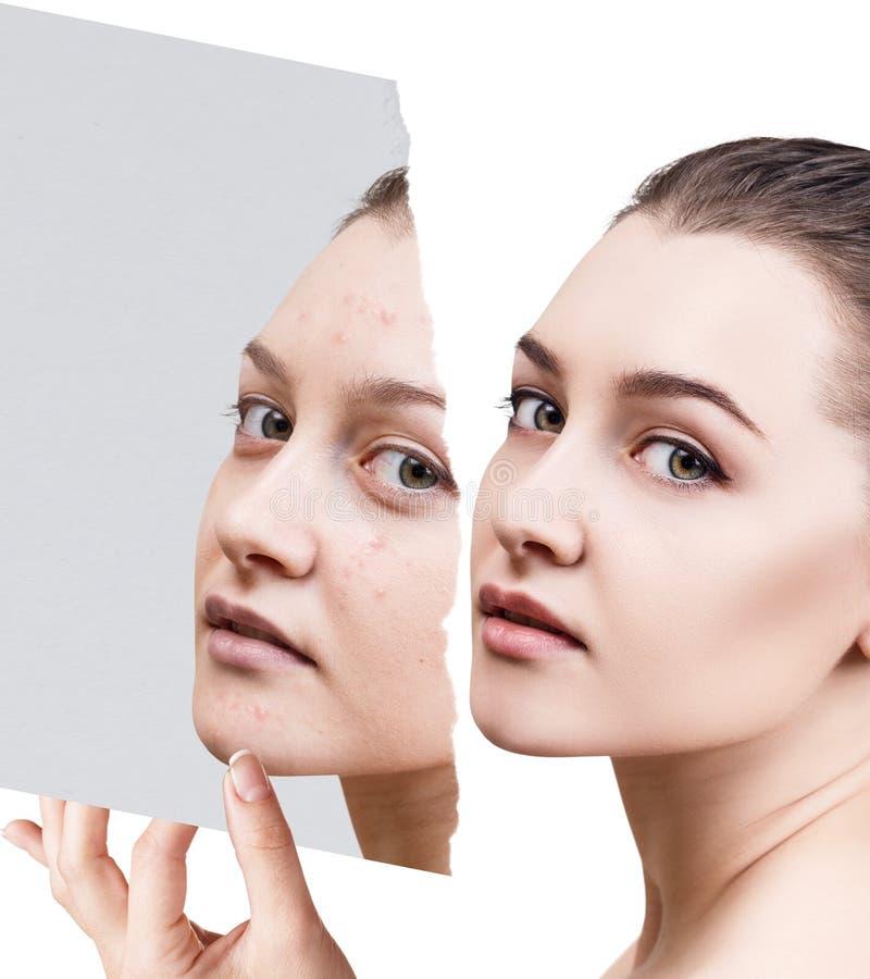 Compare de la foto vieja con acné y nueva piel sana fotografía de archivo libre de regalías