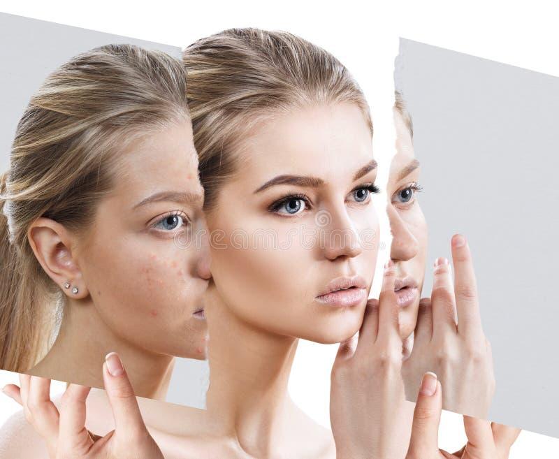 Compare de la foto vieja con acné y nueva piel sana imagenes de archivo