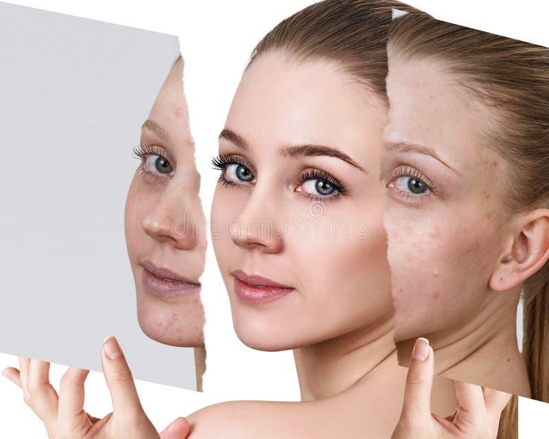 Compare de la foto vieja con acné y nueva piel sana fotos de archivo