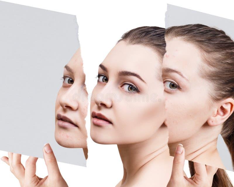 Compare de la foto vieja con acné y nueva piel sana imagen de archivo libre de regalías