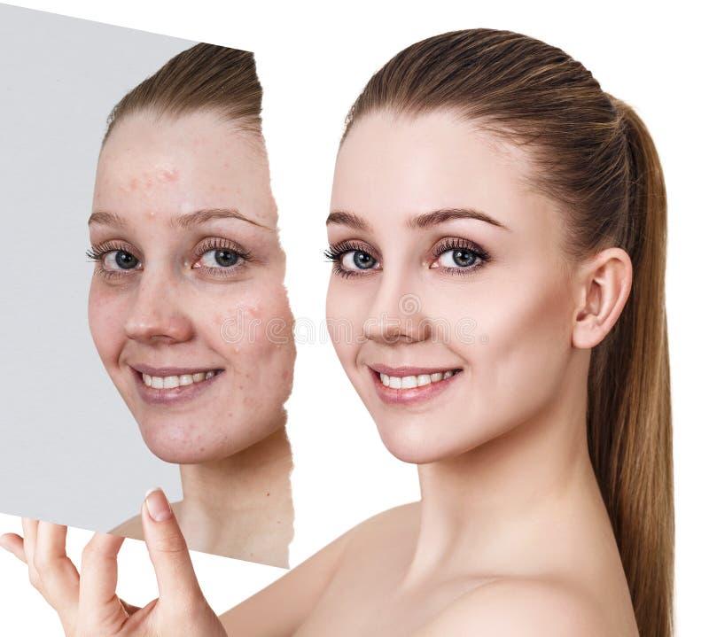 Compare de la foto vieja con acné y nueva piel sana fotos de archivo libres de regalías