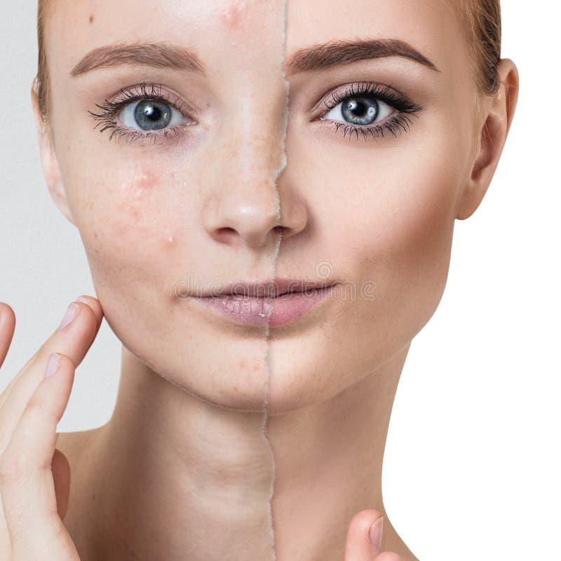 Compare de la foto vieja con acné y piel sana fotos de archivo