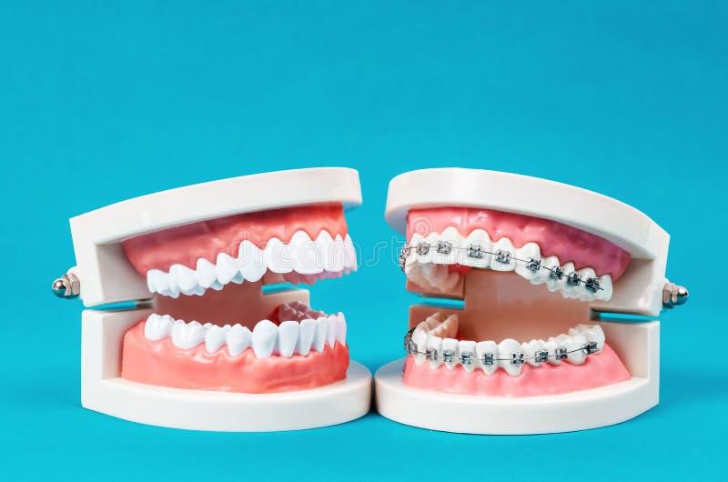Compare el modelo del diente y el modelo del diente con el apoyo dental del alambre de metal imagen de archivo libre de regalías