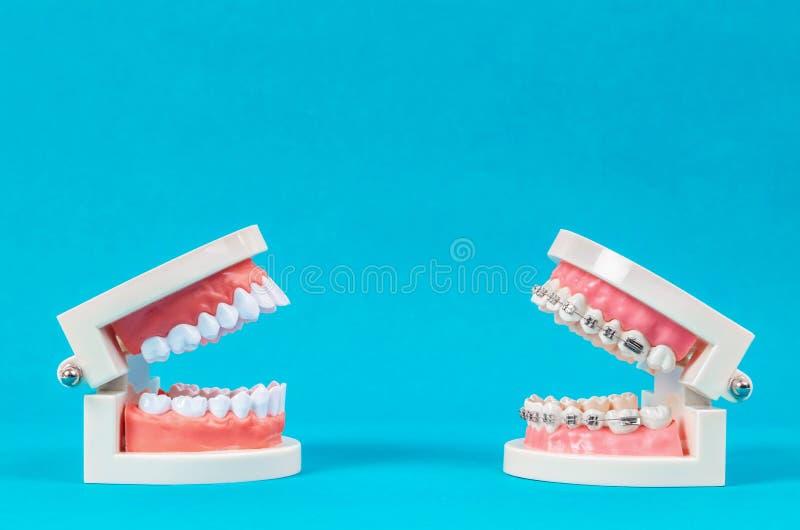 Compare el modelo del diente y el modelo del diente con el apoyo dental del alambre de metal fotografía de archivo libre de regalías