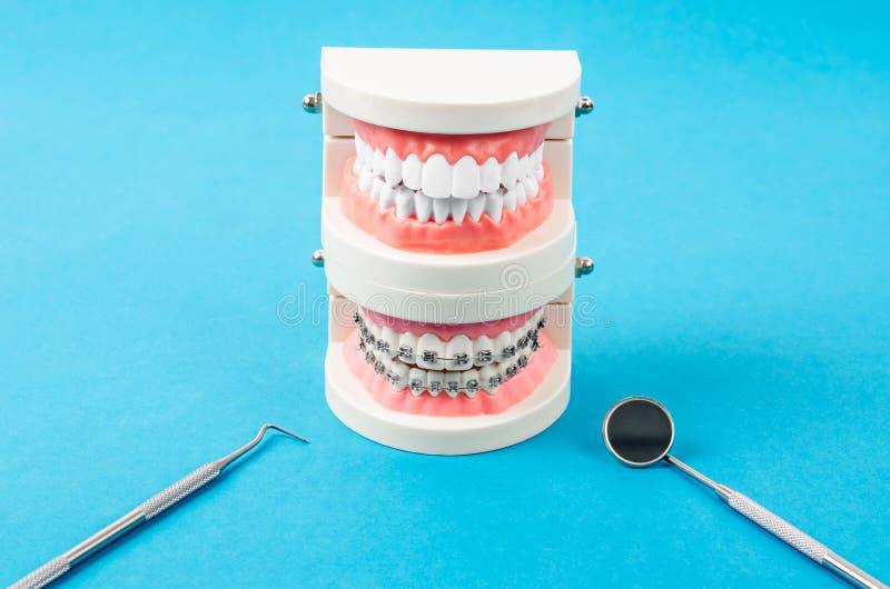 Compare el modelo del diente y el modelo del diente con los apoyos dentales del alambre de metal imagen de archivo libre de regalías