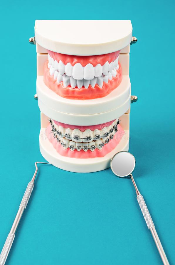Compare el modelo del diente y el modelo del diente con los apoyos dentales del alambre de metal fotografía de archivo libre de regalías