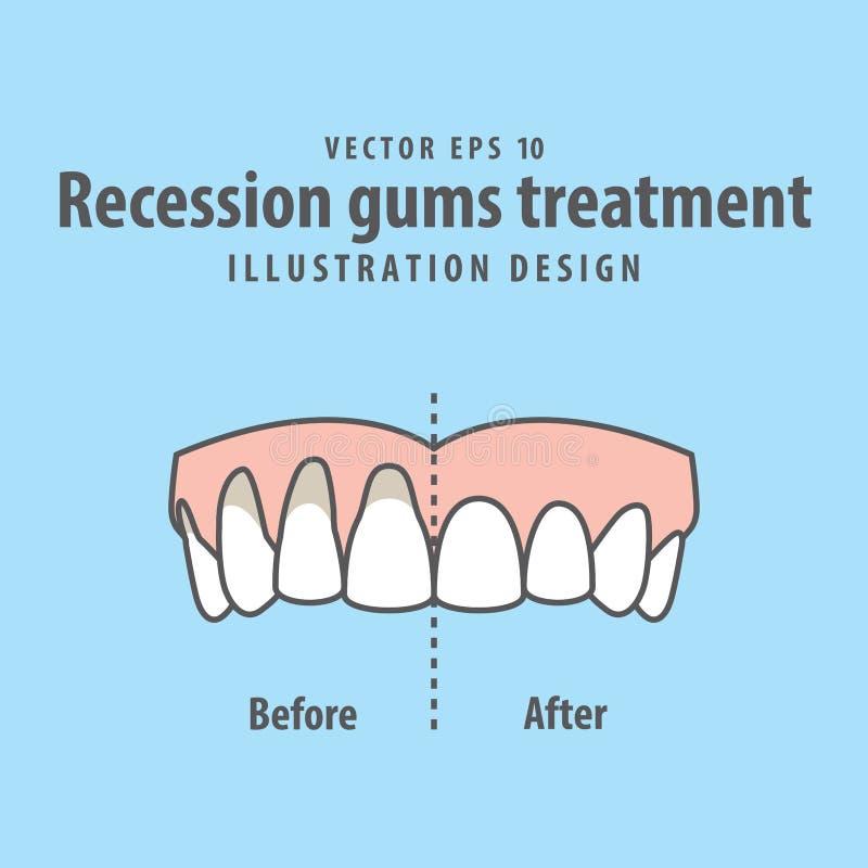 Compare o tratamento superior das gomas da retirada dos dentes antes ilustração royalty free