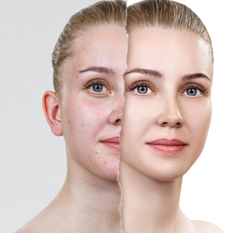 Compare of old photo with acne and new healthy skin. Torn old photo with acne. Woman before and after skin treatment royalty free stock photography