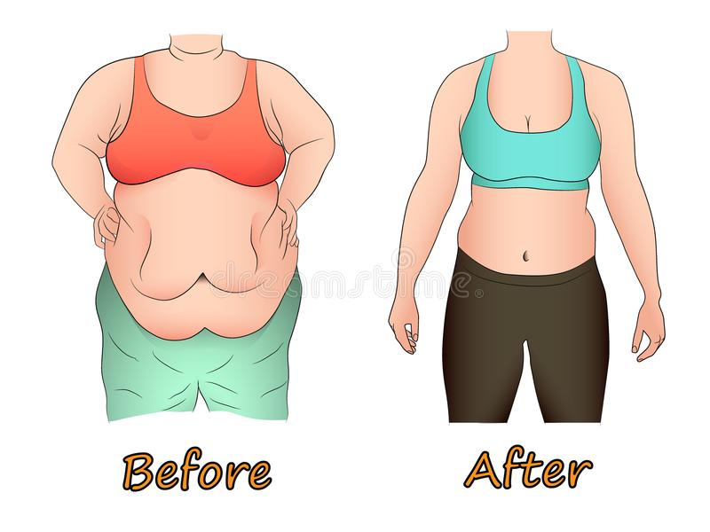 Abdominal fat of a woman before and after dieting, sport or surgery. Comparison abdominal fat of a woman before and after dieting, sport or surgery vector illustration