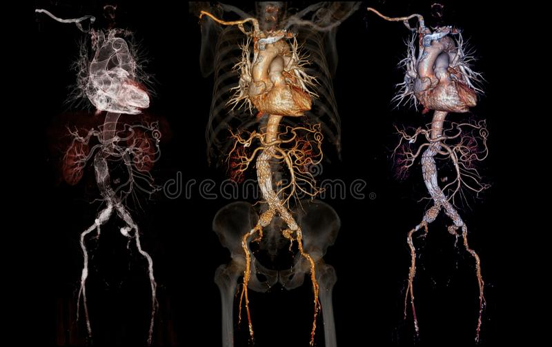 Comparison of CTA abdominal aorta 3D rendering image. With stent graft on transparent skeletal vector illustration